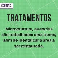 Existem inúmeros tratamentos para estrias, e a Micropuntura este é um deles. Marque o seu horário! #Estrias #Estética #Tratamento