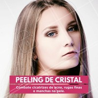 Peeling de Cristal, resultados expressivos a partir da terceira sessão. Marque seu horário #peelingdecristal #esteticasaudavel #rejuvenescimentofacial