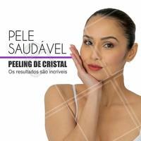 O peeling de cristal é um tratamento estético muito utilizado para combater cicatrizes de acne, rugas finas ou manchas. Venhar agendar uma consulta conosco! #peelingdecristal #esteticacomamor #rejuvenescimentofacial #peeling #ahazou #beleza #tratamentofacial #pelesaudavel