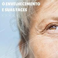 Existem diferentes variações de envelhecimento e fotoenvelhecimento:  Nível 1 – Alterações epidérmicas de pigmentação – Alterações de textura  Nível 2 – Alterações epidérmicas e dérmicas – Queratose actínica e seborreica – Rugas  Nível 3 – Rugas severas – Coloração amarelada – Comedões e poros dilatados – Lesões malignas  O envelhecimento é um processo que ocorre naturalmente com o ser humano, e está relacionado com a perda da capacidade funcional e de reservas do organismo, mudança da resposta celular aos estímulos, perda da capacidade de reparação e predisposição do organismo à doença. #ahazou #estética #esteticacomamor #saude #bemestar