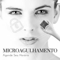 Não espere mais, marque agora suas sessões de microagulhamento para ter uma pele impecável! #Agendamento #Microagulhamento #Ahazou #Beleza #Rejuvenescer #Peleperfeita