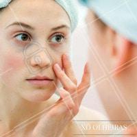 Venha conhecer nossos tratamentos e diga adeus as olheiras! #Olheiras #Tratamento #Estéticafacial