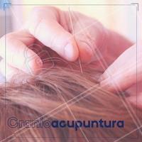 É uma técnica de acupuntura que utiliza o microssistema em uma área localizada na cabeça.  Já pensou em agendar o seu horário? Aproveite!  #ahazou #acupuntura
