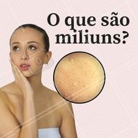 Os miliuns são pequenos cistos que aparecem na pele como lesões amareladas ou brancas, e contém acumulo de queratina em seu interior. #milium #cisto #pele