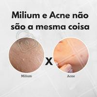 É importante lembrar que o milium não é considerado acne, porém, acaba sendo facialmente confundido como tal. Por conta de sua coloração e formato a confusão acontece facilmente. Por isso, apesar destes cistos serem benignos, mesmo quando parecem crescer exageradamente, é importante consultar um profissional para saber o que pode ser feito a respeito. #milium #cisto #pele #esteticafacial #acne