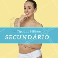 O milium secundário pode ser encontrado em qualquer parte do corpo e costuma aparecer após traumas e em conjunto com algumas doenças de pele. Para a remoção deste, é importante consultar um profissional especializado. #milium #cisto #pele