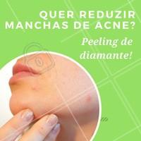 Se você sofre com manchas e cicatrizes de acne, agende já o seu horário para uma consulta e descubra o poder do peeling de diamante! 💎 #peelingdediamante #esteticafacial #esteticacomamor #ahazou #peeling