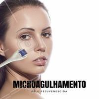 ➡ O Microagulhamento é indicado para: ✅ Aumento da penetração e ação de substâncias ativas; ✅ Melhoria da textura da pele; ✅ Espessamento da epiderme; ✅ Rejuvenescimento da pele; ✅ Pele danificada pelo sol; ✅ Hipo ou hiperpigmentação; ✅ Grandes poros, produção sebácea excessiva; ✅ Rugas (leves, médias e profundas); ✅ Estrias; ✅ Cicatrizes, inclusive de acne e de queimaduras; ✅ Alopécia ➡ Contra-indicações O uso do microagulhamento é contra-indicado para pessoas com tendência a quelóides, dificuldades de cicatrização, com acne e piodermites. ➡ Resultados A indução da produção de colágeno e elastina proporcionada pelo microagulhamento, é observada após a primeira sessão de tratamento. O paciente percebe significativa melhora das rugas, cicatrizes, melanoses e problemas de pigmentação, tendo sua pele com aspecto notadamente rejuvenescido.   #microagulhamento #colágeno #tratamentofacial #beleza #estetica #ahazou #autoestima #rejuvenescimentofacial #rugas #estrias