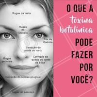 """A toxina botulínica, também conhecida como """"botox"""", pode fazer muito mais pelo seu rosto do que você imagina! 😉 Que tal agendar seu horário e conhecer mais sobre esse tratamento incrível? #toxinabotulinica #ahazou #esteticafacial #botox"""