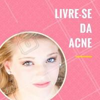 Quando estamos na puberdade, é muito comum que apareça a famosa acne:  a presença de espinhas, comedões (conhecidos como cravos) e até oleosidade excessiva.  Venha conhecer nossos tratamentos faciais específicos pra acne e controle esse incômodo! 💆 #acne #ahazou #espinhas #limpezadepele #esteticafacial  #5ptz