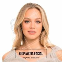 A Bioplastia Facial é realizada com implantes infiltrativos com caráter definitivo, e proporciona linhas e ângulos de beleza para quem não os têm, ou, para quem já possui, possa realça-los ainda mais.  É feito uma análise facial, verificando as proporções, tanto verticais, quanto horizontais, indicando quais as áreas que estão em desarmonia. . O foco dos implantes infiltrativos, geralmente, é o contorno ósseo da face, como: ✨Ângulos e Contorno Mandibular; ✨Maçãs do rosto (Malar); ✨Queixo e Contorno do Queixo; ✨Nariz e Lábios. Após a análise feita, as regiões a serem trabalhadas visam proporcionar mais equilibrio, simetria à face, realçando a beleza natural, sem exageros ou mudanças radicais.  Venha fazer uma avaliação. #bioplastiafacial #tratamentofacial #harmonizacaofacial #preenchimentofacial #ahazou #beleza #autoestima