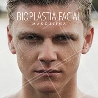 A bioplastia facial masculina consiste em volumizar pontos específicos do rosto com o objetivo de harmonizá-lo, deixando mais sexy, definido e bonito. Com ela é possível aumentar o ângulo da mandíbula, alargar o arco da mandíbula, projetar o queixo, corrigir assimetrias, etc.  É um procedimento médico realizado no consultório sob anestesia local e é feita uma avaliação prévia para verificar a necessidade de cada rosto. Marque sua avaliação!  #bioplastiafacial #dermatologia #estéticamédica #tratamentomasculino #tratamentosfaciais #ahazou #autoestima #belezamasculina