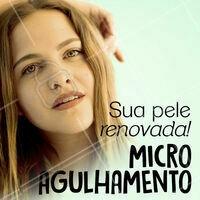 Renove a qualidade da sua pele e aproveite os benefícios do microagulhamento! 💆 #microagulhamento #pele #ahazou #esteticafacial