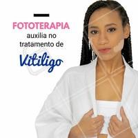 O Vitiligo é uma doença que atinge de 1 a 2% da população, e seu principal sintoma é a despigmentação da pele. A fototerapia busca estacionar a progressão do vitiligo e promove a pigmentação da pele.  Quer saber mais sobre nossos tratamentos e seus valores? Agende uma avaliação gratuita  #vitiligo #bemestar #saude #ahazou #tratamentolaser #tratamentoled #fototerapia #estetica #beleza