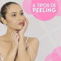 Existem vários tipos de peeling, cada um tem suas funções específicas. Conheça os principais:  1. Peeling químico com ácido retinoico: Esse tipo de peeling é usado para combater estrias, pois promove uma descamação superficial na pele e faz com que ela se renove, estimulando a formação de colágeno e melhorando visivelmente a aparência da pele;  2. Peeling químico com ácido glicólico: Este tipo também pode ser aplicado nas mãos e pescoço, tornando a pele mais macia, suavizando as rugas e melhorando as manchas contraídas pelo sol e acne;  3. Peeling químico com ácido salicílico: Este também é indicado para quem deseja clarear a pele, reduzir as rugas na face e tratar comedões. O procedimento pode ser repetido entre 2 e 4 semanas;  4. Peeling de cristal: Este tipo de peeling trata cicatrizes, estrias e flacidez da pele. É muito usado no rosto, pois torna a pele mais brilhosa e sedosa. Os cristais de óxido de alumínio, presentes em sua composição, possuem propriedades coagulantes que melhoram a saúde da pele de uma forma geral;  6. Peeling de diamante: Se trata de um procedimento mais intenso. Nesse tipo de peeling realiza-se uma remoção da camada externa da pele, sem deixar a pele vermelha. Logo após a primeira sessão já é possível perceber uma pele mais suave e macia. O tratamento estimula a renovação da pele através do aumento da produção de colágeno. Além da acne, queloides, também é utilizado para reduzir marcas de cicatrizes cirúrgicas.  #peeling #peelingdediamante #peeling químico #peelingdecristal #tratamento #ahazouestetica #estéticafacial