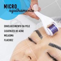 Se você quer uma pele viçosa, sem manchas e renovada, venha fazer o microagulhamento! Entre em contato e faça uma avaliação!  #microagulhamento #esteticafacial #ahazouestetica #peleperfeita #melasma #acne