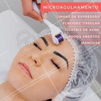 O microagulhamento tem muitos benefícios! Conheça o poder transformador das agulhas e mude a aparência da sua pele. #esteticafacial #ahazou #microagulhamento