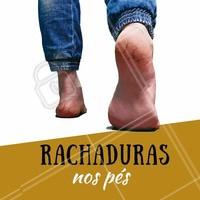 As rachaduras dos pés podem ser causadas pelo atrito dos sapatos ou falta de hidratação. Isso causa o engrossamento (acúmulo de queratose) da epiderme dos pés. Depois do engrossamento, vem os calos que podem ser acompanhados de fissuras (rachaduras). #rachadura #ahazou #pés #podologia #fissuras #calos #peressecado