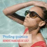 Sim! O peeling químico é um grande aliado no tratamento de manchas de sol, acne, além de diminuir rugas finas e poros dilatados. Agende uma avaliação gratuita e aproveite os benefícios desse tratamento. #esteticafacial #ahazou #peelingquimico #peeling