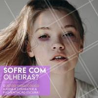 Agende uma avaliação. #esteticafacial #ahazou #olheiras #cuidados