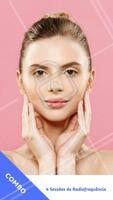 Acabe com a flacidez facial de uma vez por todas! Aproveite esse COMBO especial e agende sua avaliação. #radiofrequencia #ahazou #esteticafacial #estetica