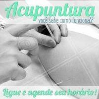 A acupuntura tem inúmeros benefícios para o corpo, como: ajuda no emagrecimento, melhora a dor nas costas, reduz o estresse, alivia problemas estomacais, alívio para dores de cabeça, diminui a ansiedade e sintomas de depressão, sintomas da TPM e outros diversos tipos de dores! O tratamento da acupuntura é personalizado de acordo com cada pessoa, por isso consulte sempre um profissional. #acupuntura #ahazou #saude #bemestar