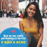 Vamos tratar sua acne? Agende um horário e conheça as inúmeras soluções para o tratamento! #esteticafacial #ahazou #estetica #acne