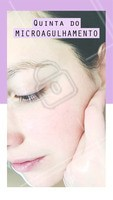 Quinta é dia de tratar cicatrizes de acne, manchas, flacidez e muito mais com o microagulhamento! Aproveite o preço especial só nessa quinta-feira. #esteticafacial #ahazou #microagulhamento