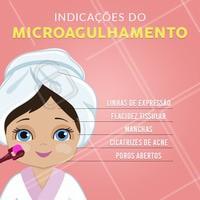 O microagulhamento é um procedimento onde várias microagulhas que possuem diferentes tamanhos são inseridas na pele, estimulando a produção de colágeno e tratando outros problemas de pele. #microagulhamento #ahazouestetica #esteticafacial