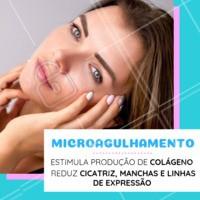 Agende já a sua avaliação para conhecer o procedimento de microagulhamento. #microagulhamento #ahazou #esteticafacial #cuidadoscomapele #manchas #poros