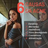 A acne pode surgir de diversos fatores. Por isso é tão importante o cuidado de um profissional qualificado, para avaliar a causa da acne e encontrar o melhor processo de cura. #acne #ahazou #esteticafacial #estetica