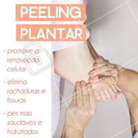 O peeling plantar é um tratamento para quem sofre com fissura e ressecamento nos pés. Venha cuidar dos seus!  #podologia #ahazou #Pes #Peelingplantar