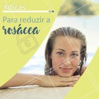 A rosácea é uma dermatose crônica que pode trazer bastante desconforto. Cuidados adequados com a pele podem reduzir os sintomas. Confira algumas dicas para cuidar se cuidar durante o verão: ⠀ - Hidrate a pele diariamente, imediatamente após lavar o rosto. Escolha um creme hidratante sem perfume e com ativos calmantes; ⠀ - Use protetor solar diariamente, mesmo em dias nublados, com um FPS de 30 ou superior; ⠀ - Evite usar cosméticos que não sejam receitados por um dermatologista. Uma das características da pele com rosácea é ser muito reativa; ⠀ - Evite o consumo de bebidas alcoólicas, que costumam agravar o flushing; ⠀ - O uso de lasers com comprimento de onda vascular podem ajudar muito no tratamento e no controle da rosácea (procure um esteticista); ⠀ - Estudos recentes mostram que microdoses de toxina botulínica em determinados pontos da pele da face podem ajudar a diminuir de forma consistente o flushing (vermelhidão repentina que surge na região), tão característicos dessa dermatose. ⠀ Consulte um especialista para mais informações sobre o tratamento da rosácea. ⠀ #estetica #esteticafacial #esteticaderesultados #esteticaebeleza #esteticacomamor #beleza #esteticaebemestar #saude #bemestar #manchas #sol #esteticistaresponde #ahazou #like #likeforlikes #autoestima #limpezadepele #summer #peleperfeita #peeling #peelingquimico #tratamentos #tratamentosexclusivos #belezainstantanea #belezainterna #belezanatural #braziliangal #brazilianwoman #brazilianbeauty #happy #vemficarlinda #vempraca #fastbeauty #cuidese #valorizese #vocemerece #loveourself #dermatologista #dermatologia #rosacea #estetica #clinicacarlaalbuquerque #dermatologiaesaude