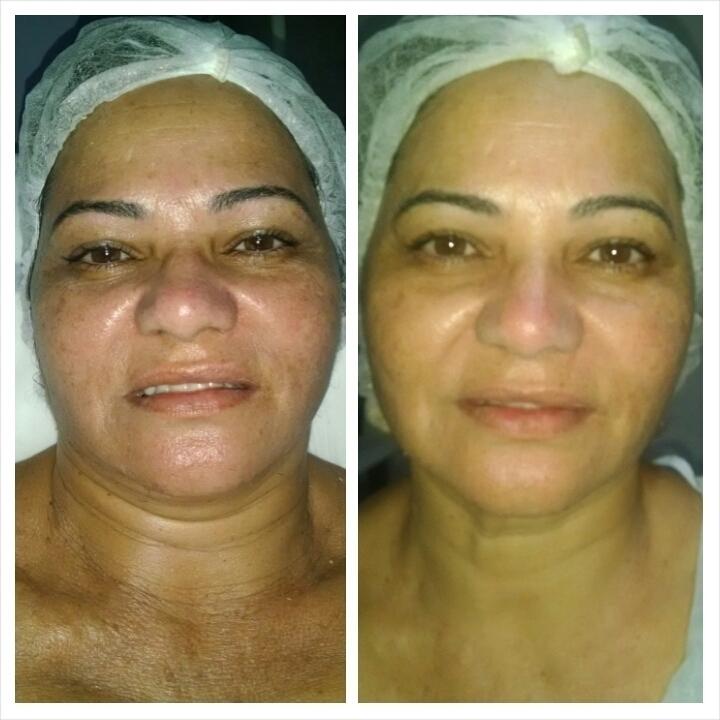 tratamento de acne e seqüelas Foi feito um peeling esteticista