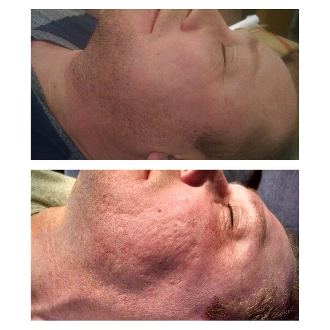 sequela de acne - microagulhamnto Técnica de microagulhamento associado a fatores de crescimento Limpeza de pele  estética  enfermeiro(a) esteticista