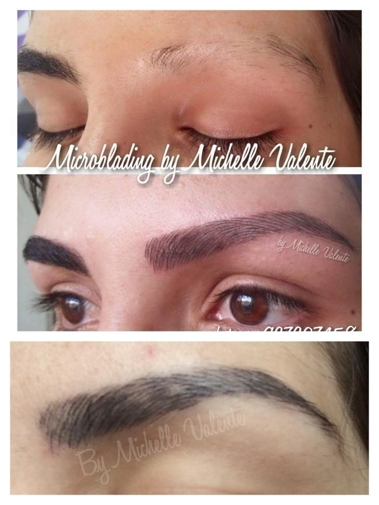 Microblading em alopecia cicatrizado  dermopigmentador(a) designer de sobrancelhas