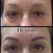 MicropigmentaçãoAntes e depois de micropigmentação de sobrancelhas