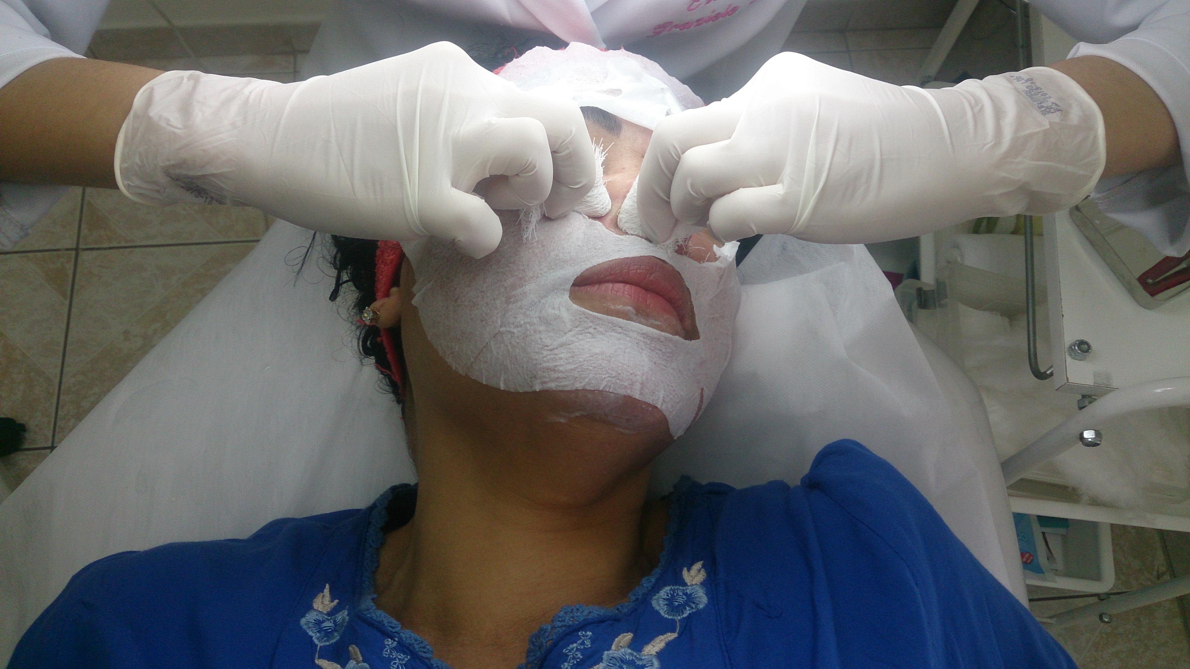 Limpeza de pele Extração de comedões! esteticista cosmetólogo(a)