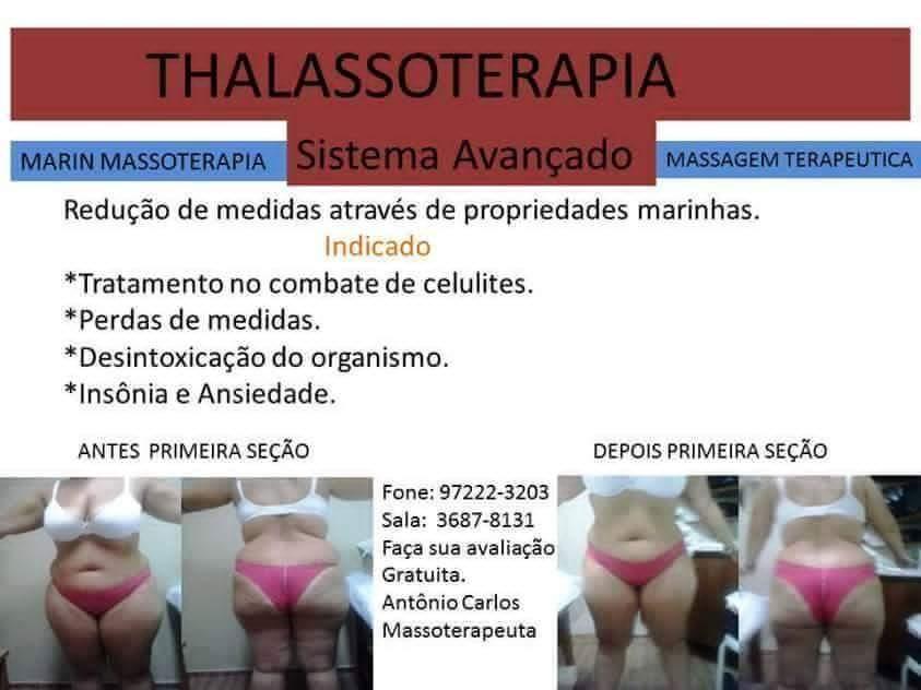 Thalassoterapia PRIMEIRA SEÇÃO  massoterapeuta quiropraxista