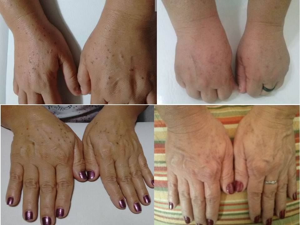 Despigmentação de manchas senis empresário(a) / dono de negócio enfermeiro(a) cosmetólogo(a) esteticista
