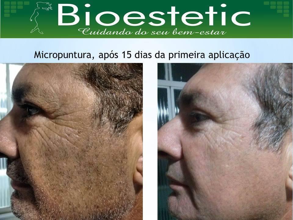 Micropuntura 15 dias após a primeira sessão empresário(a) / dono de negócio enfermeiro(a) cosmetólogo(a) esteticista