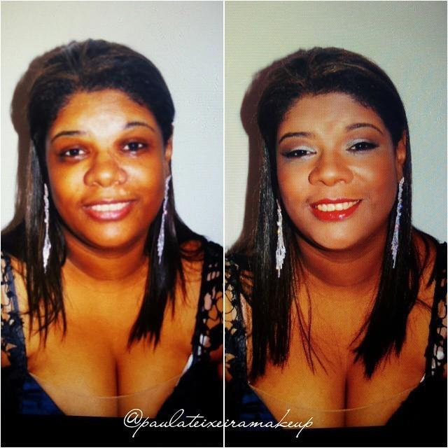 Antes e depois Antes e depois na cliente com vitiligo  maquiador(a) designer de sobrancelhas depilador(a)