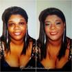 Antes e depoisAntes e depois na cliente com vitiligo