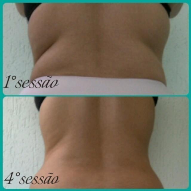 Tratamento de redução de medidas Protocolo: Ultrassom + Massagem modeladora cabeleireiro(a) cosmetólogo(a) esteticista