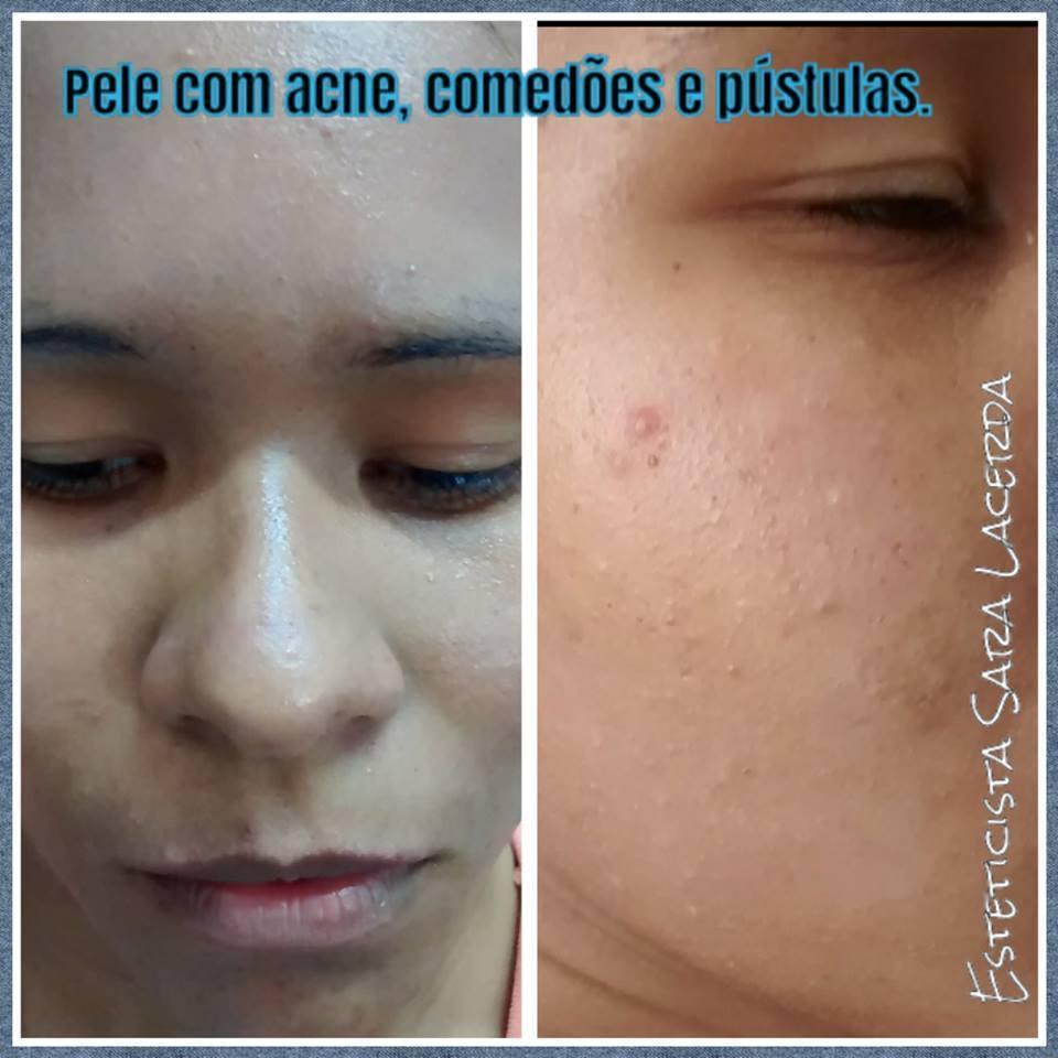 Limpeza de pele profunda em pele acneica maquiador(a) esteticista designer de sobrancelhas