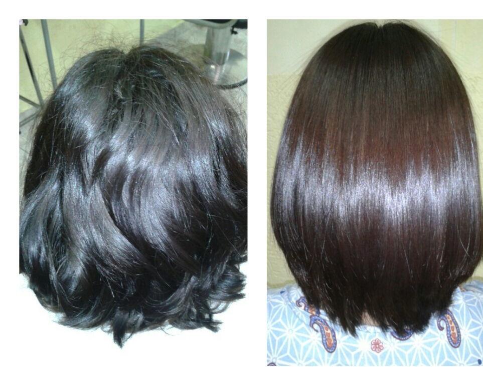 Redução de volume com Exoplastia Capilar cabeleireiro(a)