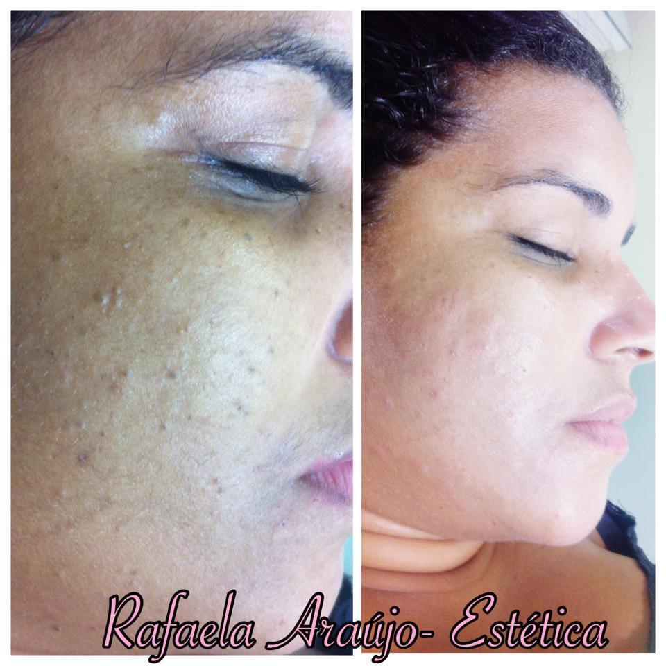 Limpeza de Pele Profunda esteticista massagista maquiador(a)