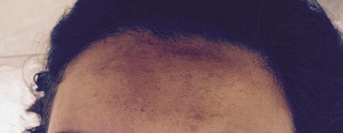 Sobrancelha Foi realizado o design de sobrancelha e a micropigmentação fio a fio. designer de sobrancelhas micropigmentador(a)
