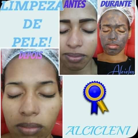HIGIENIZAÇÃO feita por mim Higienizaçao da face,aplicação de uma máscara pré tratamento,máscara termica por 20 min,extração de cravos..,uso do aparelho regenerador de celulas,máscara de argila pra finalizar filtro solar depilador(a) designer de sobrancelhas manicure e pedicure caixa