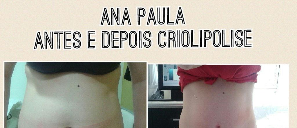 Criolipolise Criolipolise abdômen e flancos com sessões de power shape e ilipo pós crio esteticista terapeuta